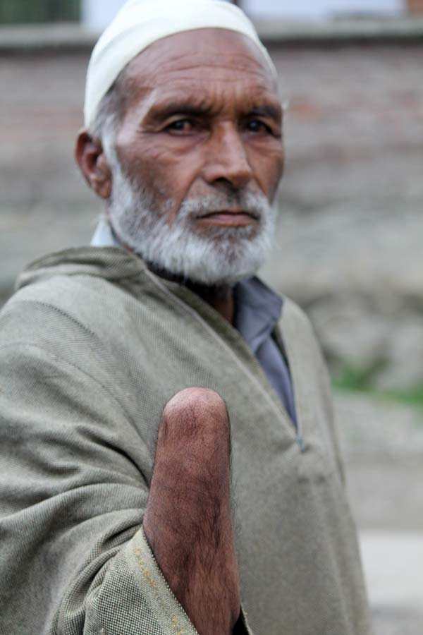 Another Victim: This elder has a similar story to narrate. While taking his cattle to meadow for grazing, he also became shell victim.