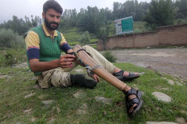 Collateral Damage: In late nineties, a teenage Bilal Ahmad of Shanglipora village had gone to meadow for playing cricket with his friends. He had no idea that he would return home later walking on a single leg. He happened to step on stray shell left in the meadow, which got exploded and devoured his right leg. Later, army replaced the loss with an artificial leg. But the replacement couldn't instill a sense of normalcy in Bilal all these years.