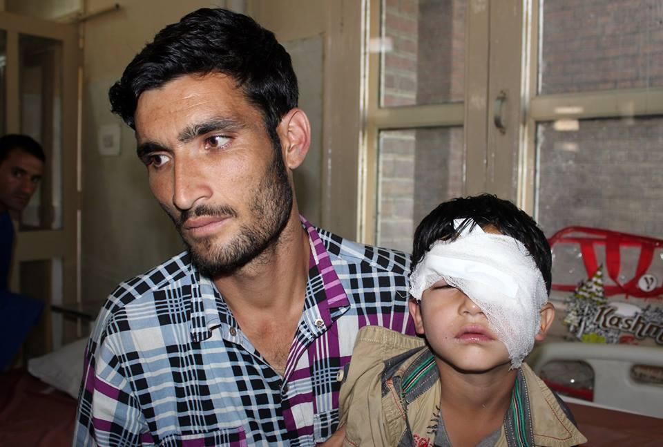 Five year old boy, Nasir Altaf, was hit byb pellets in Kokernag area on Friday. (KL Image courtesy: Umar Ganie)